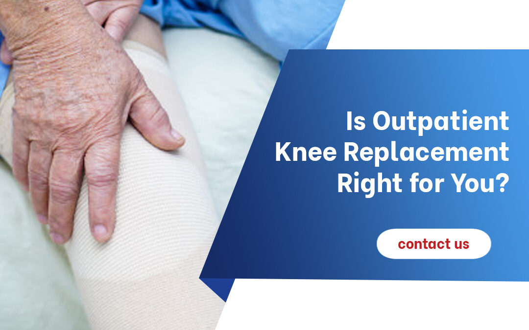 Is Outpatient Knee Replacement Right for You? Six Common Indicators