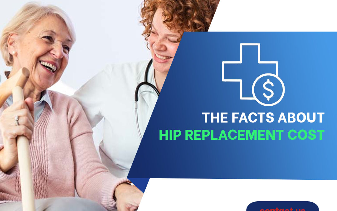 The Facts About Hip Replacement Cost