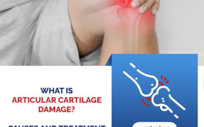 What is Articular Cartilage Damage? Causes and Treatment