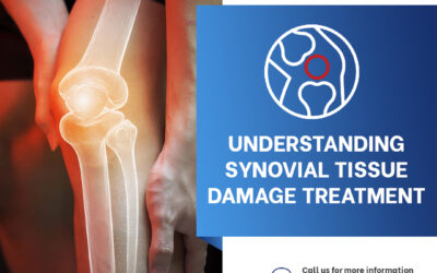 Understanding Synovial Tissue Damage Treatment